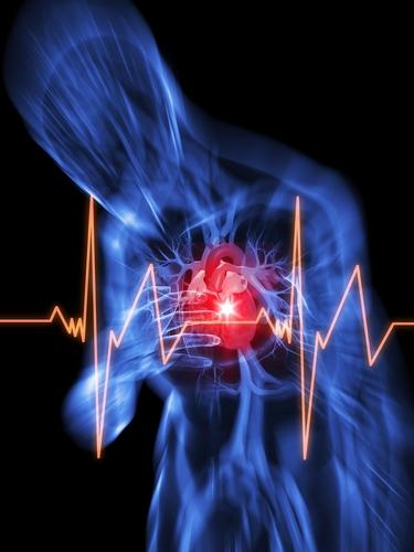Cardiovascular Disease Smoking