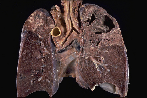 the prevalence of cigarette smoking related diseases in the world today Annals of the american thoracic society cigarette smoking respiratory diseases in the world: realities of today—opportunities for tomorrow.
